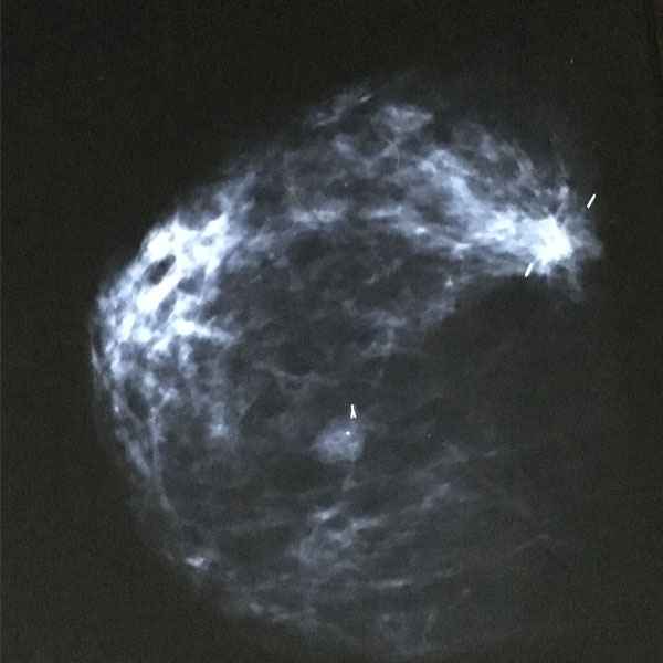 Mammogram shows the areas of cancer
