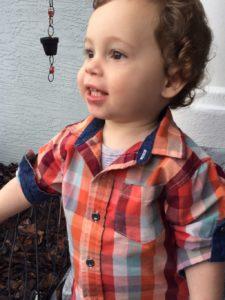 cleft lip toddler
